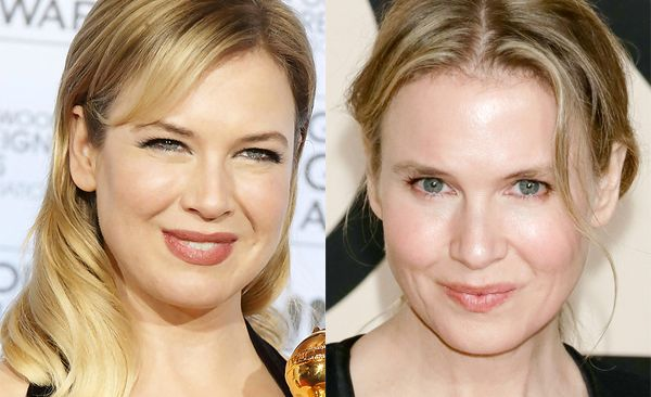 Renee-Zellweger-Plastic-Surgery-Before-After-Photos