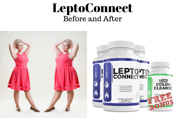 Leptoconnect before and after pictures and results is a living proof that this supplement works. Read countless reviews on our website today.
